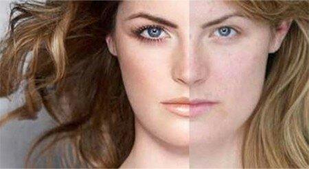 До, во время и после процедуры фотоомоложения