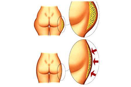 Как проходит процедура кавитации ультразвуковой и когда становятся видны результаты