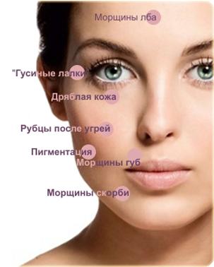 Воздействие пилинга ретиноевого
