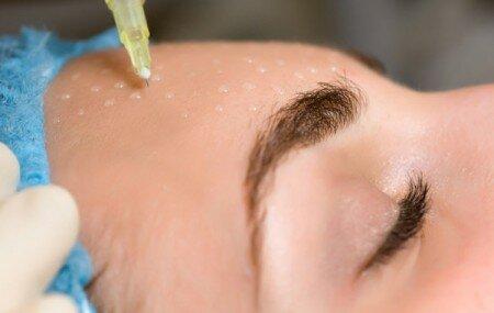 Процедуры для омоложения лица: мезотерапия