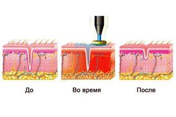 Что происходит при радиоволновой подтяжке кожи?