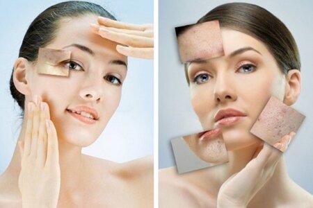 Результаты лазерной чистки лица