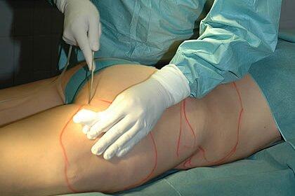 Как проводится хирургическая липосакция ультразвуком?