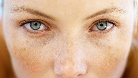 Пигментные пятна на лице – причина возникновения