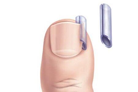 Мазь для ногтя вросшего ногтя