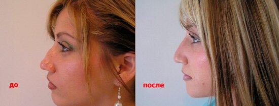 Безоперационная ринопластика: до и после