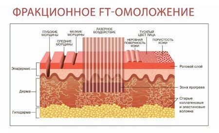 Разновидности фракционного лазерного омоложения