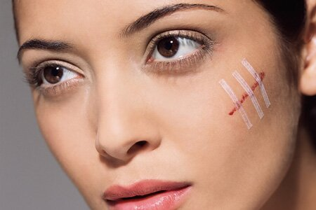 Удаление шрамов на лице и теле