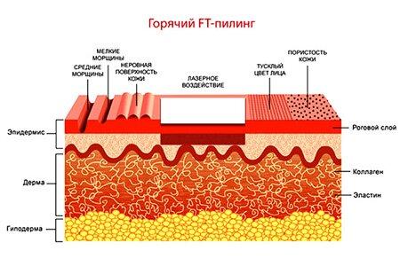 Как проводится процедура лазерного пилинга лица