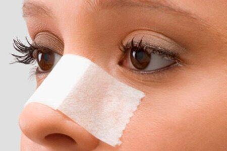 Как проводится пластика носа