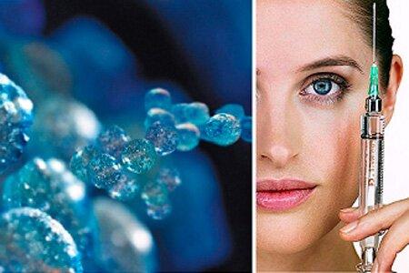 Уколы гиалуроновой кислоты в косметологии