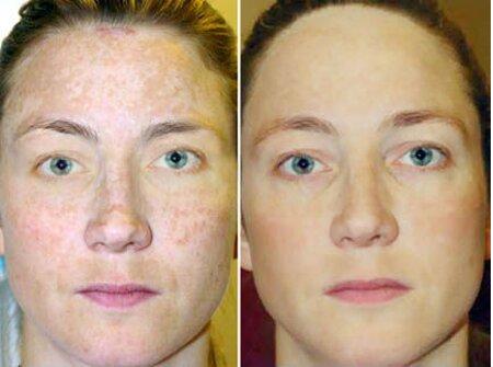 Какие косметологические эффекты дает фракционный фототермолиз