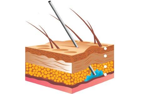 Показания к выполнению мезотерапии волос