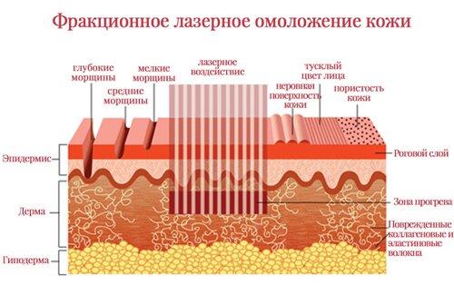 Зачем нужно лазерное омоложение и как оно действует