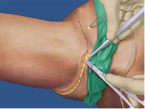 Хирургическая подтяжка