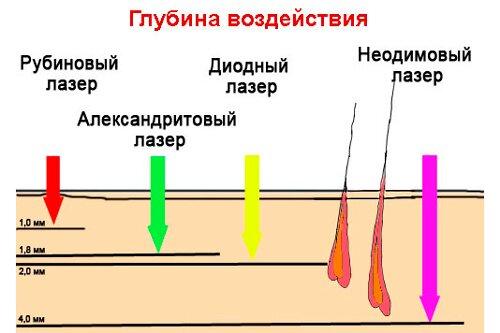 Отличие диодной эпиляции от других видов лазеров