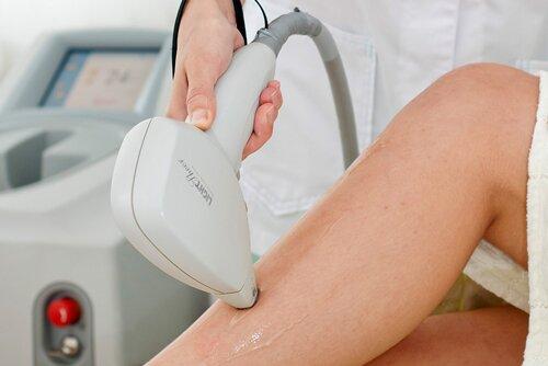 Проведение процедуры и предварительная подготовка при эпиляции диодным лазером