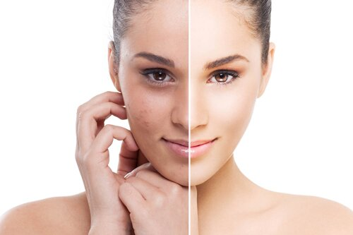 Лазерное лечение акне: чистая кожа в короткие сроки!