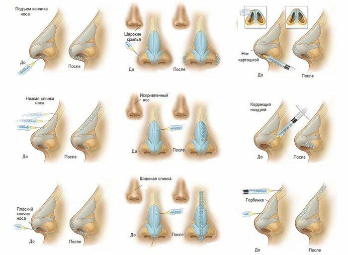 Показания к контурной пластике носа