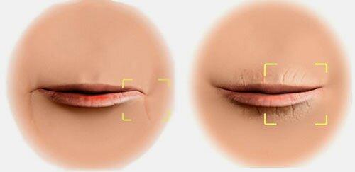 Почему кожа вокруг губ так уязвима?